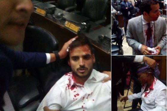 Diputados agredidos por partidarios del régimen chavista en la Asamblea Nacional