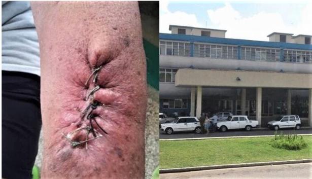 Hija protesta por la atención médica de su padre en Cuba y comparte una imagen de cómo le suturaron el brazo.